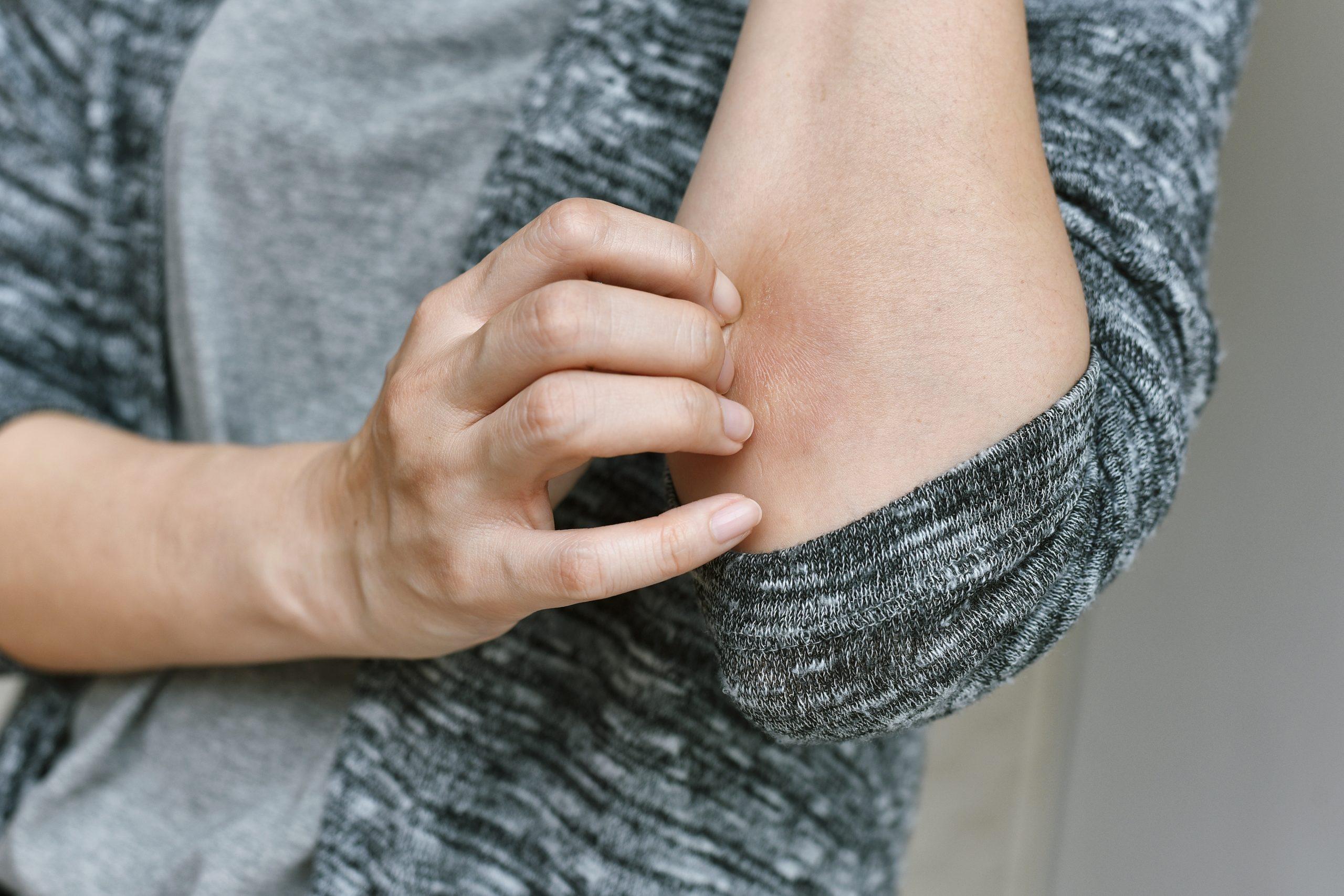 Porque a Psoríase não é uma doença só de pele